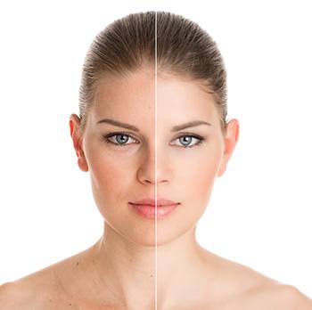 La Mesa area doctors offer Botox treatment