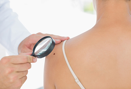 San Diego patients with skin cancer can find compassionate, effective treatment here