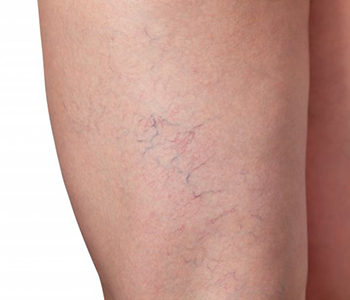 Dr. Christopher Crosby at Grossmont Dermatology Medical Clinic explains what to expect after the sclerotherapy procedure.