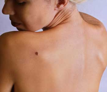 Melanoma Treatment, Grossmont Dermatology Medical Clinic