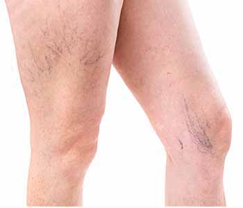 The Board-Certified dermatologists at Grossmont Dermatology in La Mesa, CA offer sclerotherapy to treat leg veins