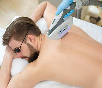 Man doing a Laser hair removal