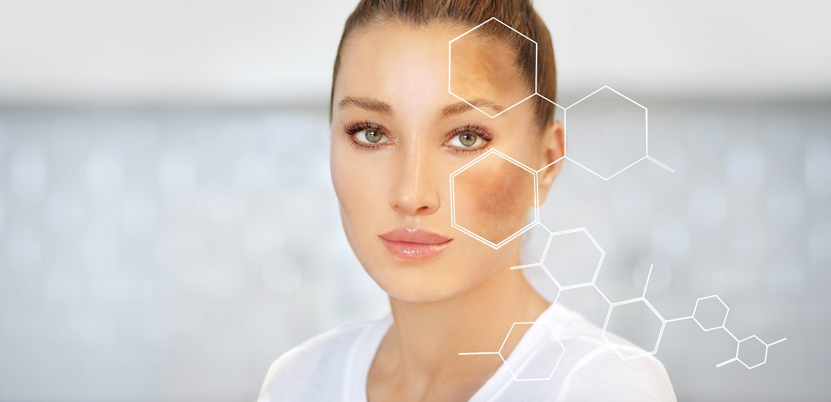 Melasma Treatments in San Diego