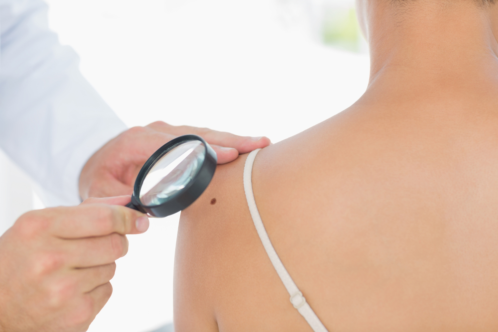 Skin Cancer Exam in San Diego