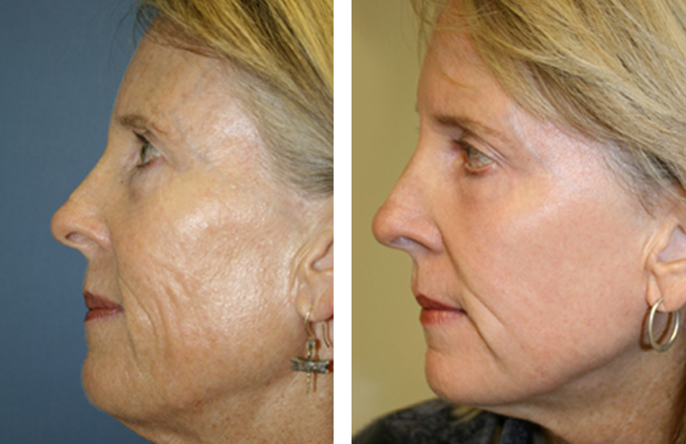 Before and After Image 1 of Grossmont Dermatology Medical Clinic