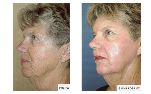 Dermatology Photo Gallery La Mesa CA - FX Before and After Treatment, Case 02