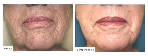 Dermatology Photo Gallery La Mesa CA - FX Before and After Treatment, Case 03