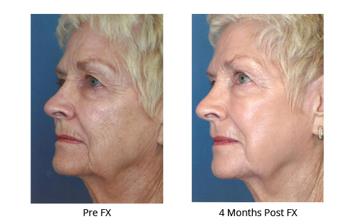 Dermatology Photo Gallery La Mesa CA - FX Before and After Treatment, Case 01