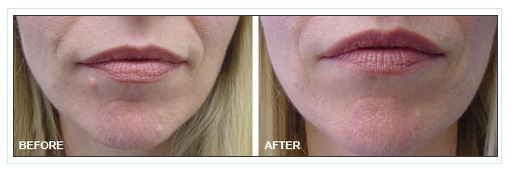 Dermatology Photo Gallery La Mesa CA - Mole Removal Before and After Treatment